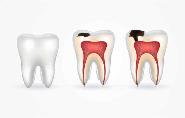 Tooth Decay - Rigby Dental