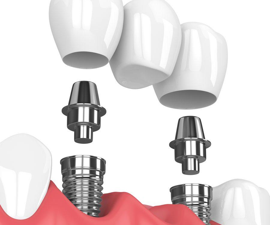 Dental Bridge - Rigby Dental