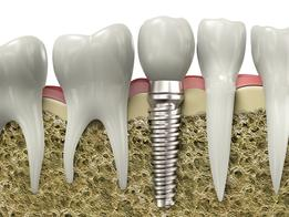 Rigby dental implant