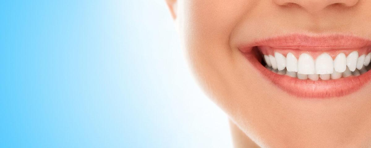White Teeth - Rigby Dental