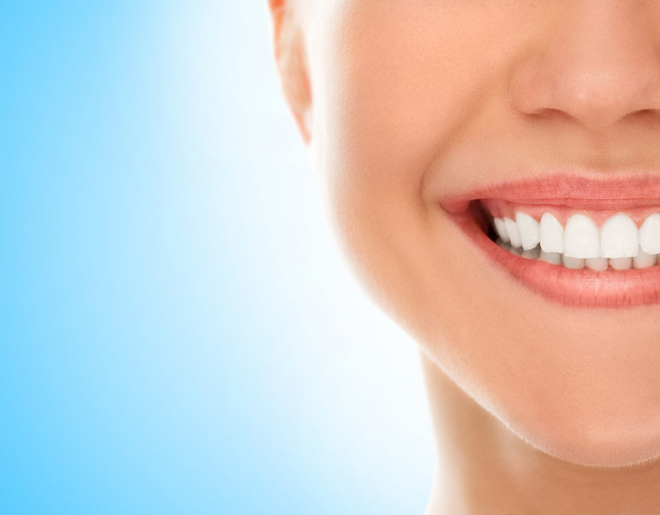 White Teeth - Rigby Dental