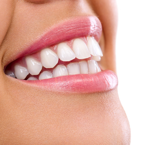 Teeth Whitening - Cosmetic Dentistry in Rigby