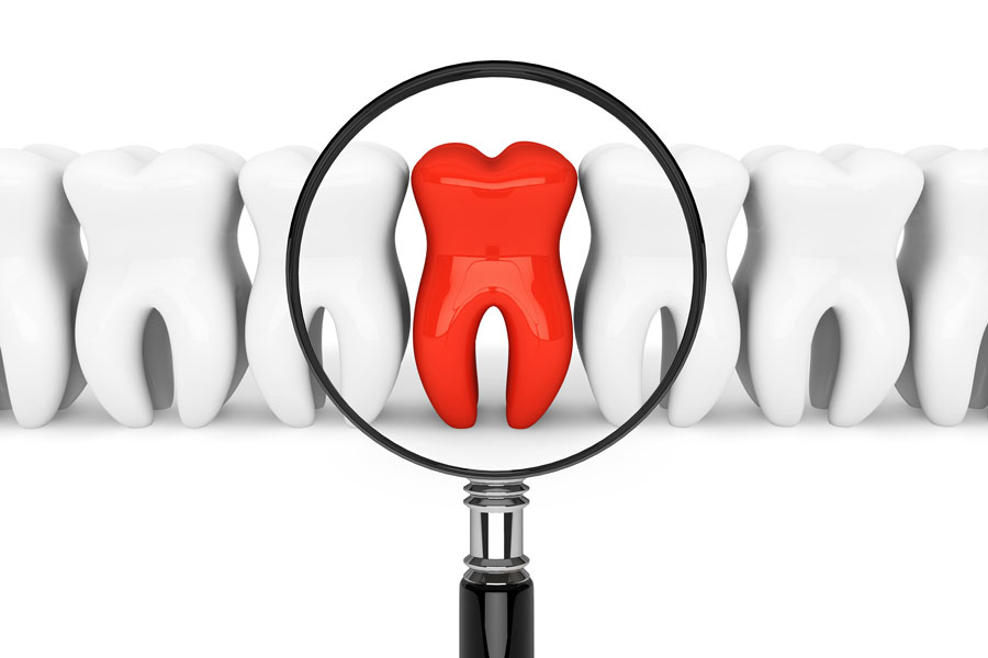 Painful Tooth - Rigby Dental