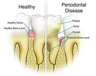 Rigby Periodontal Disease