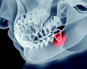 Sports-related Dental Injuries