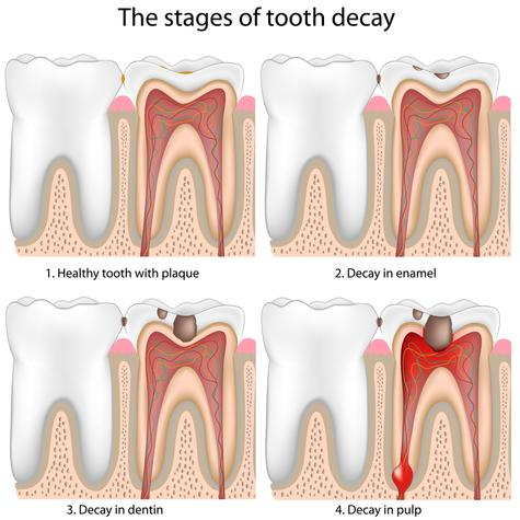 Rigby Root Canal