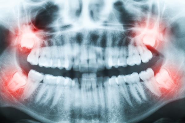Wisdom Teeth - the best dental office in rigby